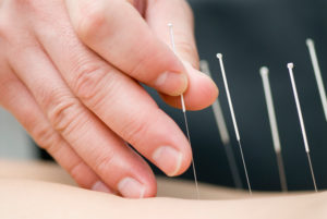 allergy treatment with acupuncture