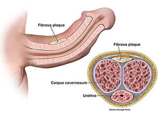 peyronies treatment