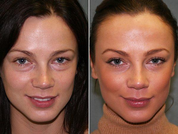 prp facial, platelet rich plasma facial phoenix az