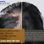 Hair Loss Restoration Treatment Phoenix AZ