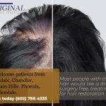 Hair Loss Restoration Treatment Phoenix AZ